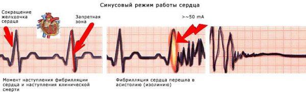 Воздействие тока