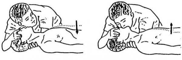 Техника осуществления искусственного дыхания «рот в рот»